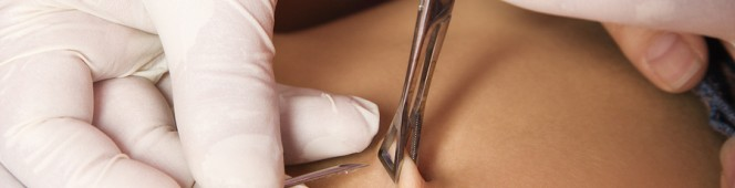 Jak wyposażyć stanowisko do piercingu?