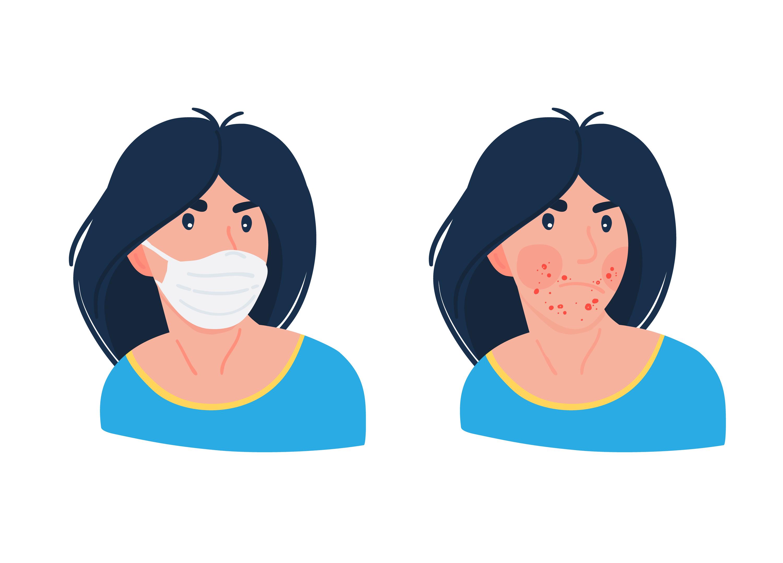 Maskne – trądzik powodowany przez maseczki